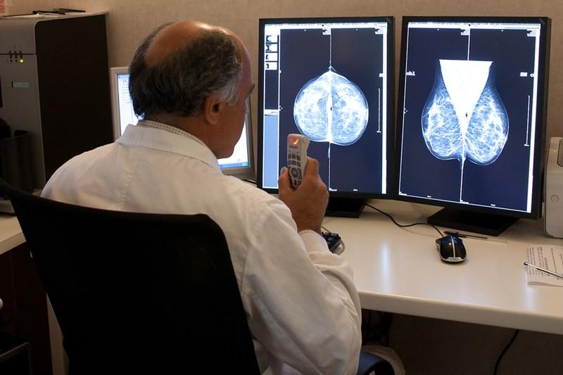 Screening mammografia, pap test e colon retto: i dati
