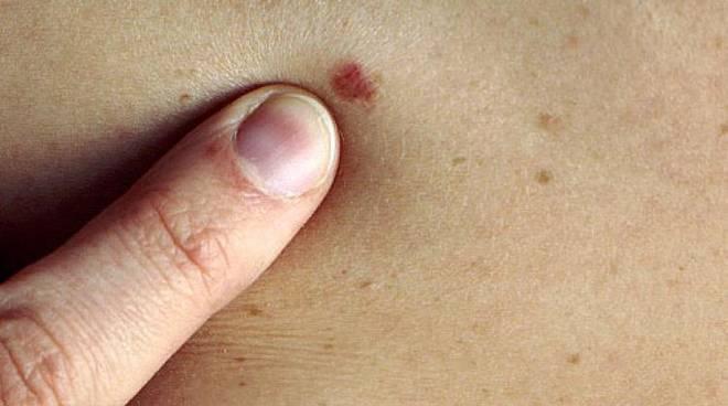 Poggibonsi, venerdì 20 visite dermatologiche gratuite per la diagnosi precoce del melanoma